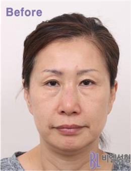 韩国BL医院面部拉皮除皱