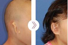 小耳畸形通常这么做!韩国profire郑在皓做小耳畸形多年!