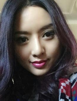 韩国Theone整形医院鼻部整形手术对比案例_术后