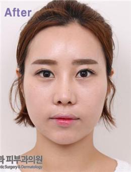 韩国BL医院全脸脂肪填充案例_术后