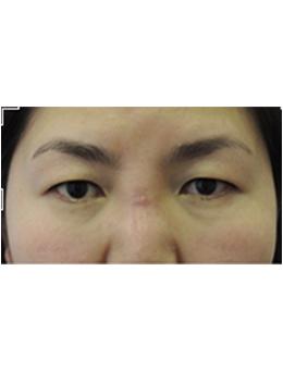 韩国StemKay整形外科面部去异物手术对比案例展示_术前