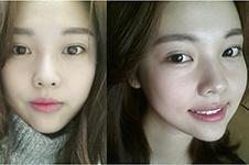 韩国Faceplus整形眼部手术案例,风格特点大揭秘!