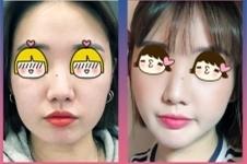 韩国佳轮韩整形做下颌角手术有什么后遗症吗?