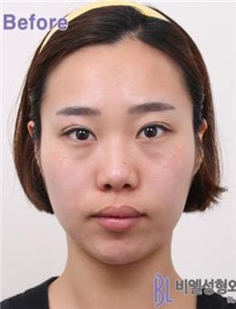 韩国BL医院全脸脂肪填充案例_术前