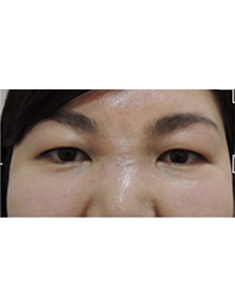 韩国StemKay整形外科面部去异物手术对比案例展示_术后