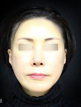 韩国迪美(美佳)整形外科面部脂肪填充手术案例
