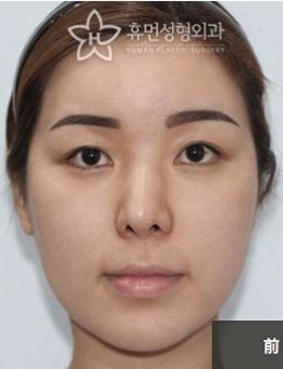 韩国秀梦整形外科埋线提升手术对比案例