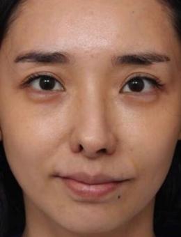 韩国清新整形外科鼻修复前后对比照片