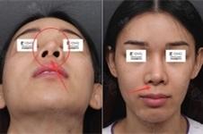 清新整形安邰晥隆鼻怎么样,针对假体畸形歪鼻如何修复?