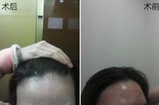 谁说植发一定要剃光头?韩国多娜无痕植发效果解析