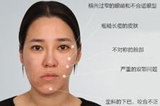 韩国菲斯莱茵李真秀,面部轮廓矫正案例分析