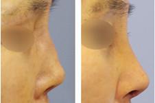 真人案例告诉你:韩国朱诺鼻修复可预防炎症及萎缩