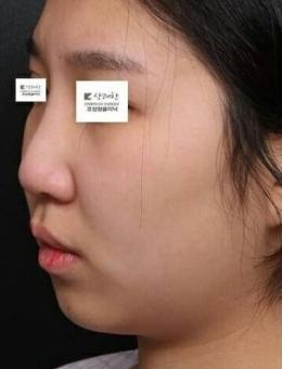 韩国清新医院安邰晥隆鼻整形前后对比案例
