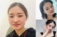 韩国隆鼻整形排名前五医院揭秘,差评超低你值得一看!