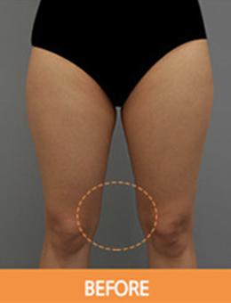 韩国劳波儿整形外科大腿吸脂手术案例