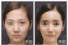 韩国4月31日整形外科解决短下巴、宽下巴、下巴后缩好方法