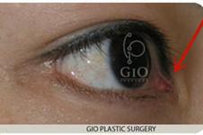 韩国GIO整形外科车知勳修复失败眼角案例,帮你重拾自信!