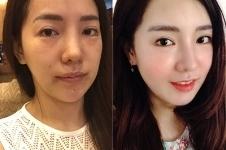 韩国做面部脂肪填充案例价格明细展示!