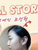 韩国diva金钟明整形医院隆鼻官方案例图片