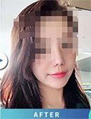 韩国diva整形医院隆鼻前后对比图片