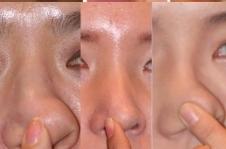 整形大揭秘:能做猪鼻子就一定纯天然初鼻?