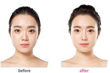 韩国ID整形激光溶脂真人案例解析:提升去脂一举两得!
