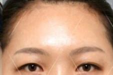韩国人气整形卓佑炫外科,内窥镜修复抬头纹案例