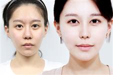 韩国面部脂肪填充哪家医院好?优尼克医院这方面出名吗?