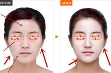 面部衰老、皮肤松弛的人,做自体脂肪填充效果很赞!