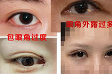 功课分析内眼角修复哪家好,附韩国7个眼角修复医院名单