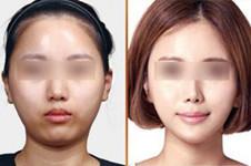 韩国本地人认可的TL整形医院,做眼鼻轮廓整形好吗?