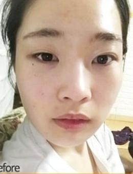 韩国themoon整形外科脂肪填充+眼综合手术对比案例_术前