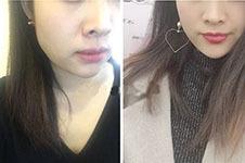 韩国林二石皮肤科地址在哪儿?皮肤管理如何收费?
