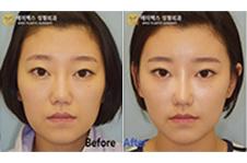 自体脂肪填充全脸很假?这组案例图片告诉你成功关键点!