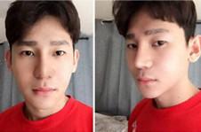 韩国GNG整形医院男士隆鼻修复真人整容日记分享