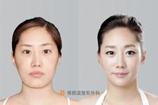 韓國博朗溫整形金兌奎面部輪廓V臉+鼻修復手術案例