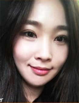 韩国themoon整形外科脂肪填充+眼综合手术对比案例_术后