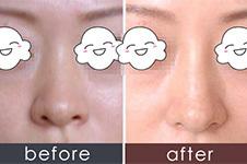 玻尿酸隆鼻一年变宽?三年脸烂了?它只适合这几种人!