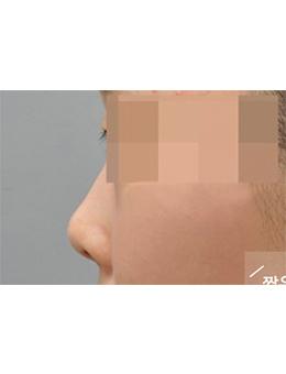 韩国balance整形外科隆鼻手术对比案例_术前
