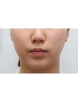 韩国balance整形外科面部吸脂手术对比案例_术前