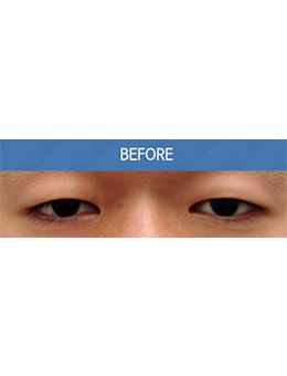 韩国balance整形外科上睑下垂矫正手术对比案例_术前