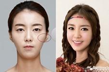 韩国美迪莹整形徐范信颧骨手术真的无痕不下垂吗?