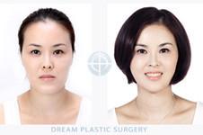 韩国梦想整形金永晙双鄂手术可同时缩小方下颌吗?