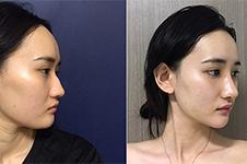 2019年韩国鼻整形模版告诉你,韩式翘鼻适合什么脸型!