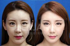 韩国丽延长整形外科擅长微整,无医疗事故是真的吗?