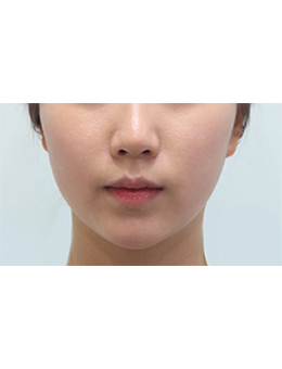 韩国balance整形外科面部吸脂手术对比案例_术后