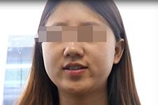 面部吸脂后脸下垂?韩国医院教你一招轻松避免后遗症。