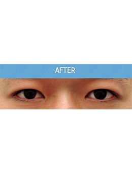 韩国balance整形外科上睑下垂矫正手术对比案例_术后