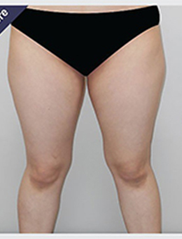 韩国perfect整形外科大腿环吸案例对比_术前