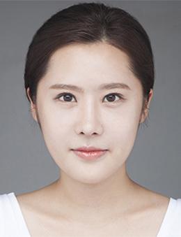 韩国new style整形外科眼鼻综合案例对比_术后